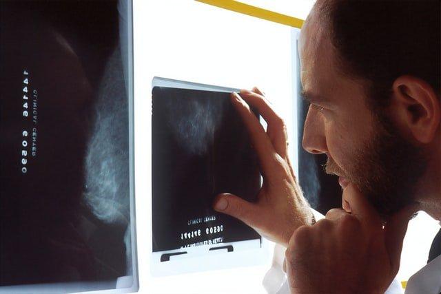 אבחון שגוי גידול סרטני בפרוסטטה, Prostate cancer