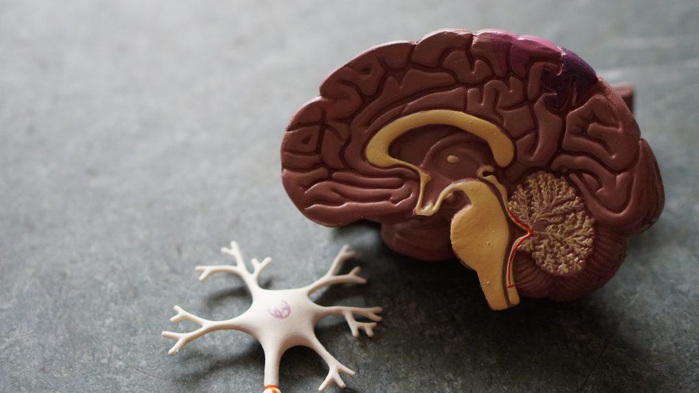 רשלנות רפואית בארוע מוחי