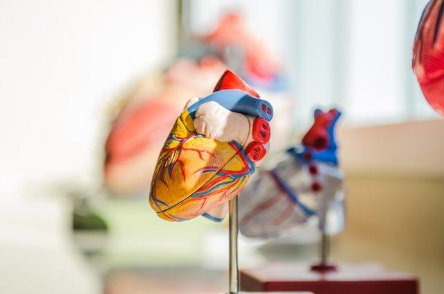 אוטם שריר הלב סיבוכים