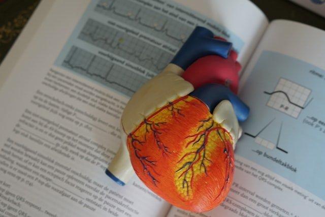 אוטם שריר הלב סיבוכים אבחון וטיפול