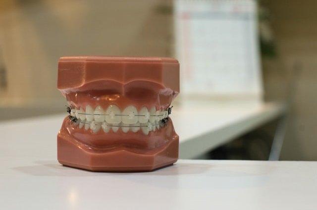 סוגי רשלנות רפואית רפואת שיניים